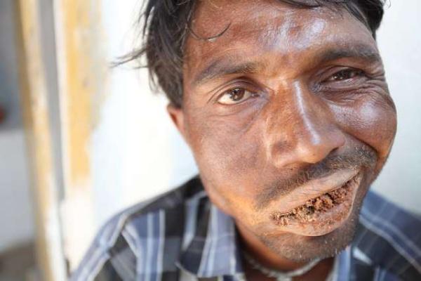 Индиец 20 лет питается кирпичами и камнями